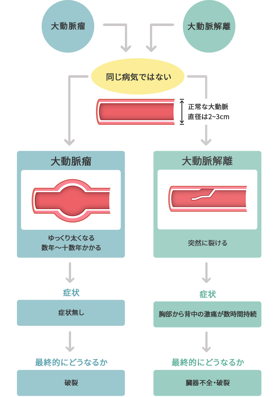 解離 性 大動脈 瘤 病院