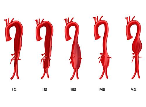 胸腹部大動脈瘤|大動脈瘤について 詳細編 | 社会医療法人財団 石心会 ...